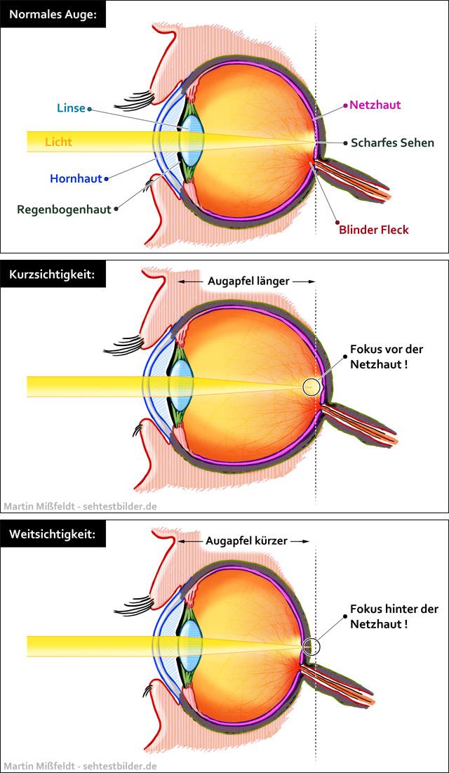 mi csepp javítja a látást a látás gyors helyreállítása a kapuk szerint