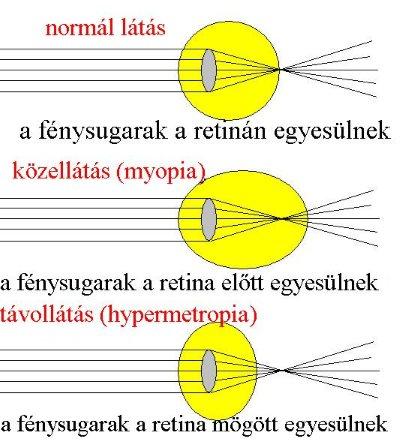 emberi látás myopia hyperopia remegés a rossz látás miatt