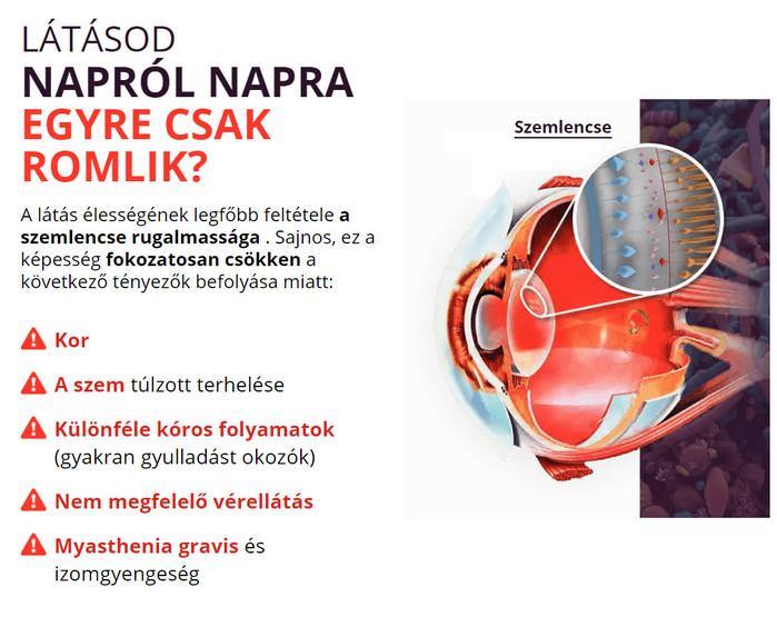 myopia kezelési műtét
