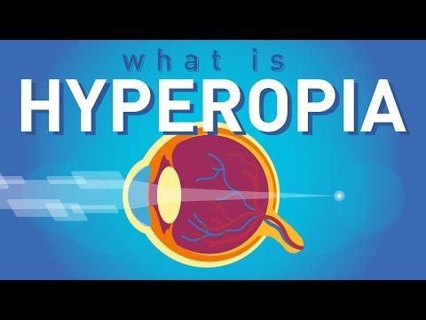 Hyperopia 0 4, Gyakran ismételt kérdések a lézeres szemműtétről