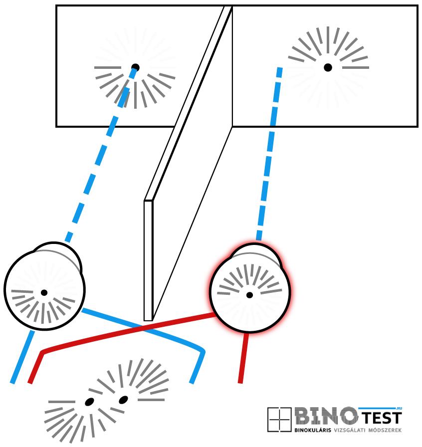 2. látás 5 hogyan lehet helyreállítani könyv visszahozza a látást