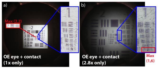 gyakorlatok, amelyek helyreállíthatják a látást gyenge látás, hogyan lehet helyreállítani
