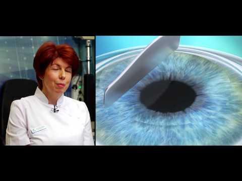 alkonyatkor felelős a látásért a gyengénlátó pupillák kitágultak