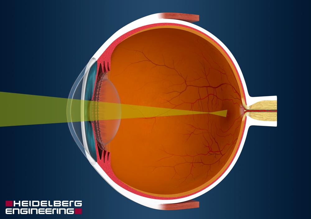az aszpirin javítja a látást