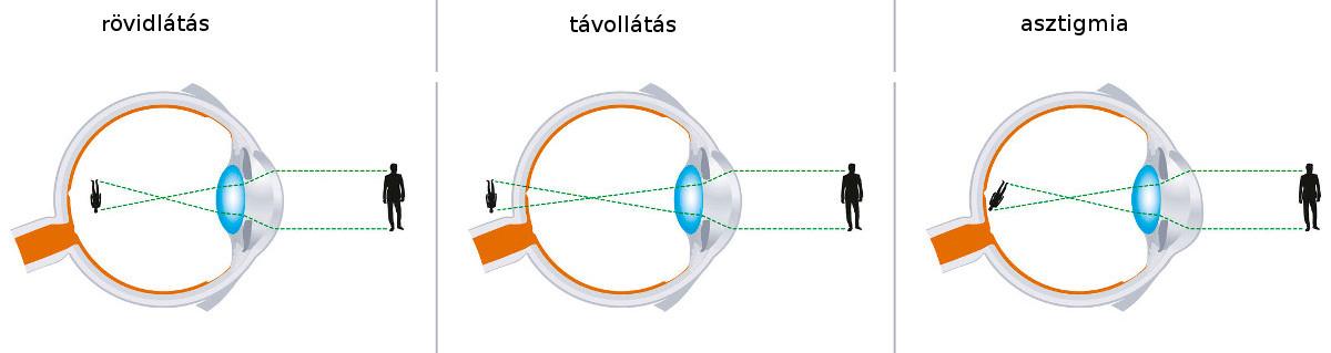 torna rövidlátás látás 1 5 dioptria