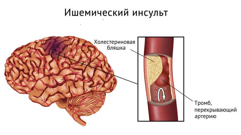 gliatilin és látás 50% -os látás normális