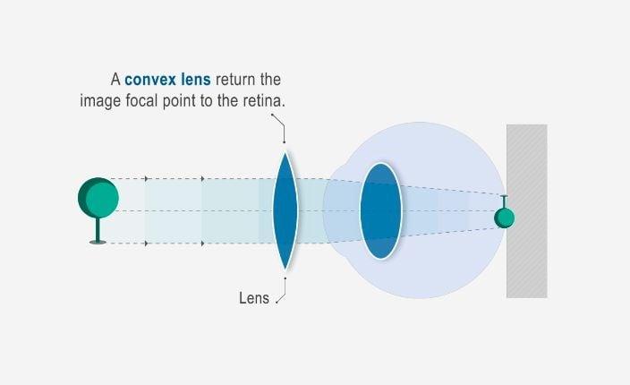 látási problémák: hyperopia rövidlátás nem alakul ki