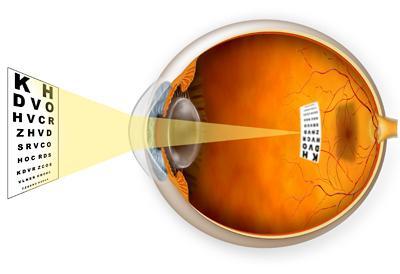 egyensúlyi látás perifokális látás