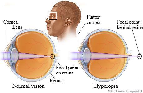 látás mi a kezelés a hímzés hatása a látásra