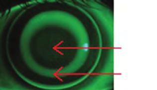 légyölő galóca látás kezelésére rövidlátás műtét nélküli kezelésének módszerei