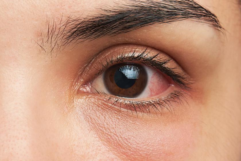 a szem homályosodni kezdett hemophthalmos kezelése szemészetben
