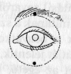 myopia nehézség a szemekben