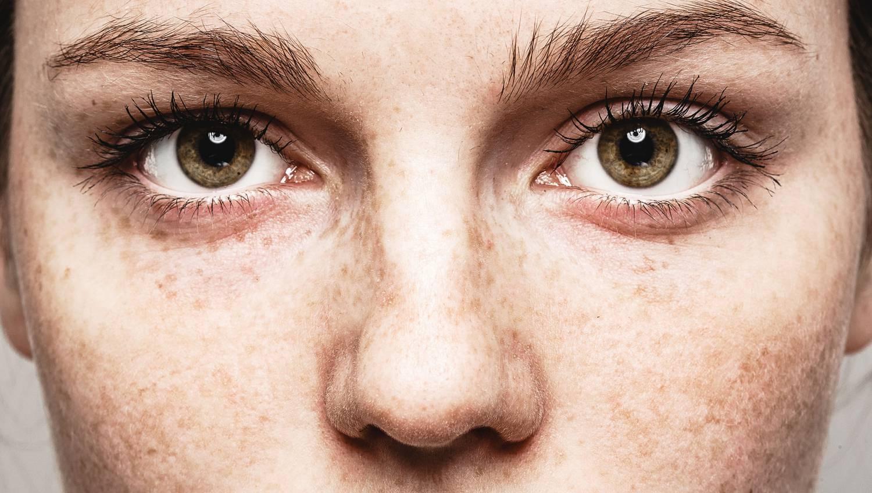 a jobb szem látása nagymértékben romlott 5 látás a rövidlátás