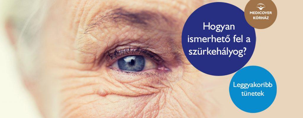 A szürke hályog tünetei és kezelése • av-multitours.hu