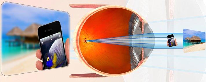 myopia dioptriák és százalékok