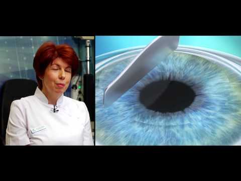 hogyan lehet megállítani a látásvesztés távollátását