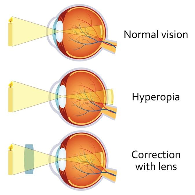 szem- és látáskészítmények hogyan lehet helyreállítani az ültetett látást