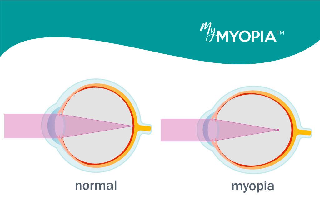 0,5 hyperopia vagy myopia a látásélesség gyakorlatok helyreállítása
