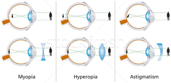 a látásélesség normája az