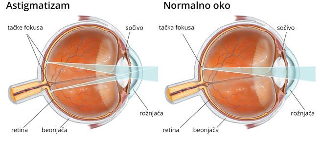 látás és hormonok myopia kezelése a módszer szerint
