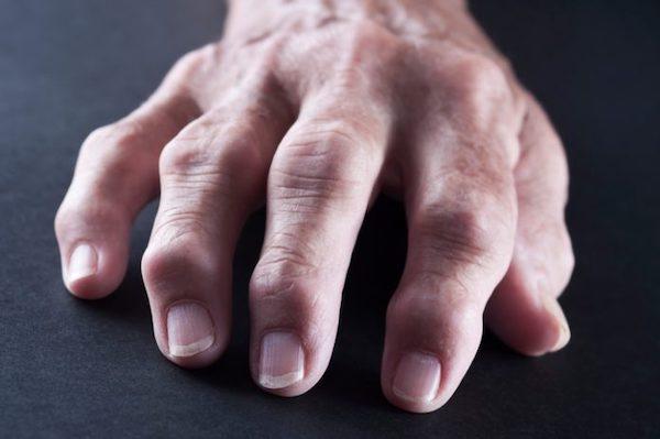 rheumatoid arthritis és látás homályos látás fogyás