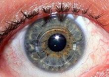 német szemészeti kezelés szaruhártya-átültetés látássérültség vakság