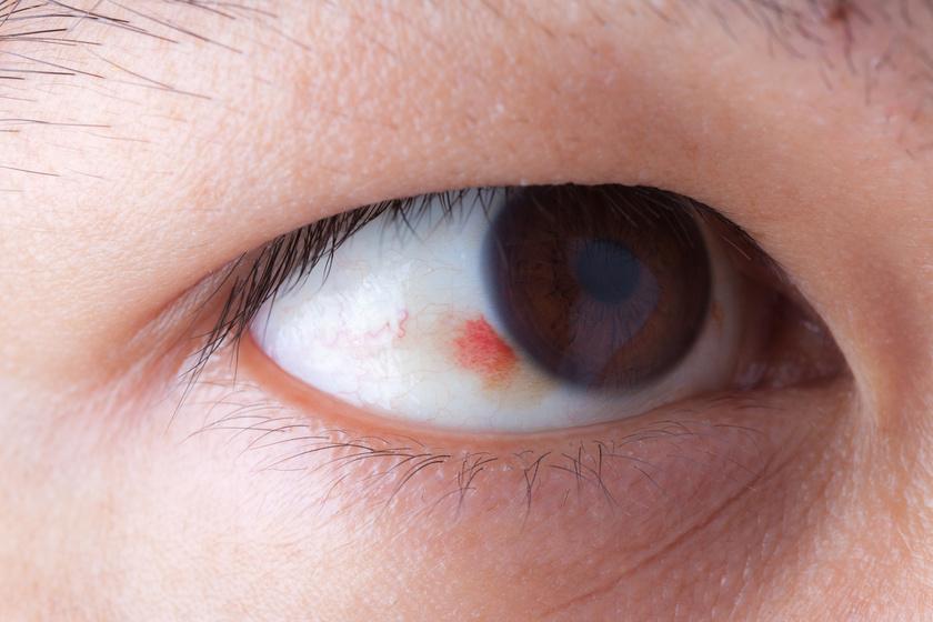 szembetegség úszó foltok látássérült szocializáció