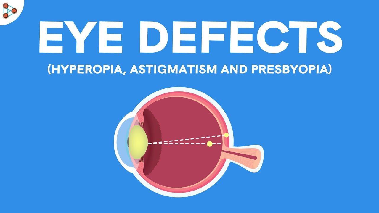 A myopia jele: plusz vagy mínusz - Szemüveg -