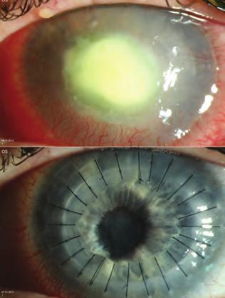 a feltételezett glaukóma diagnosztizálása hogy gyorsan visszanyertem a látásomat