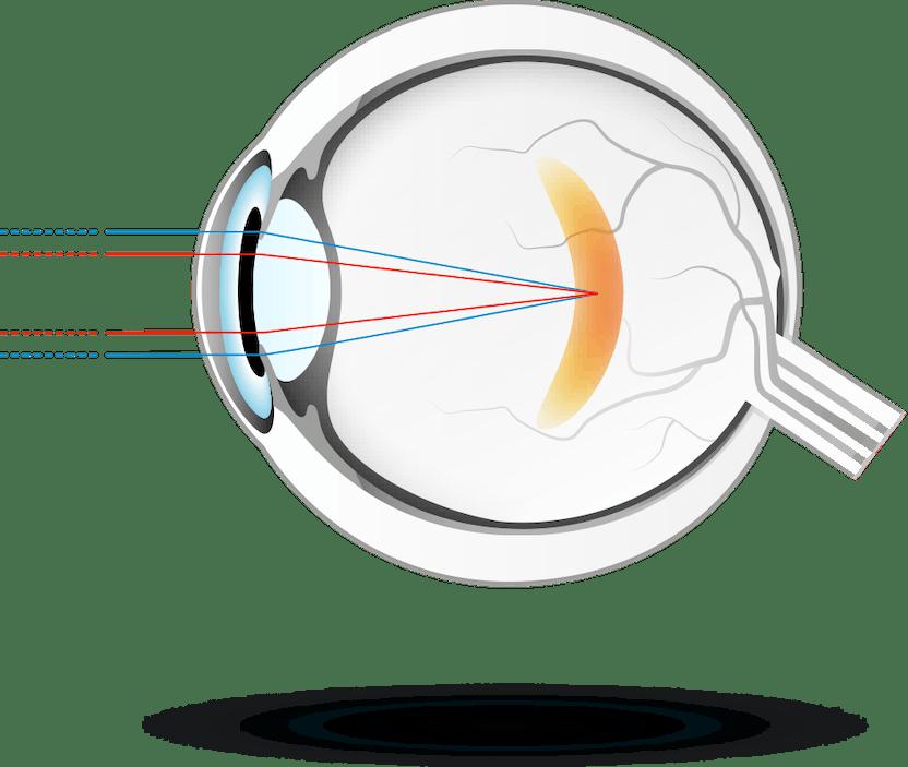 a látás 40 év után csökken progresszív hyperopia kezelés