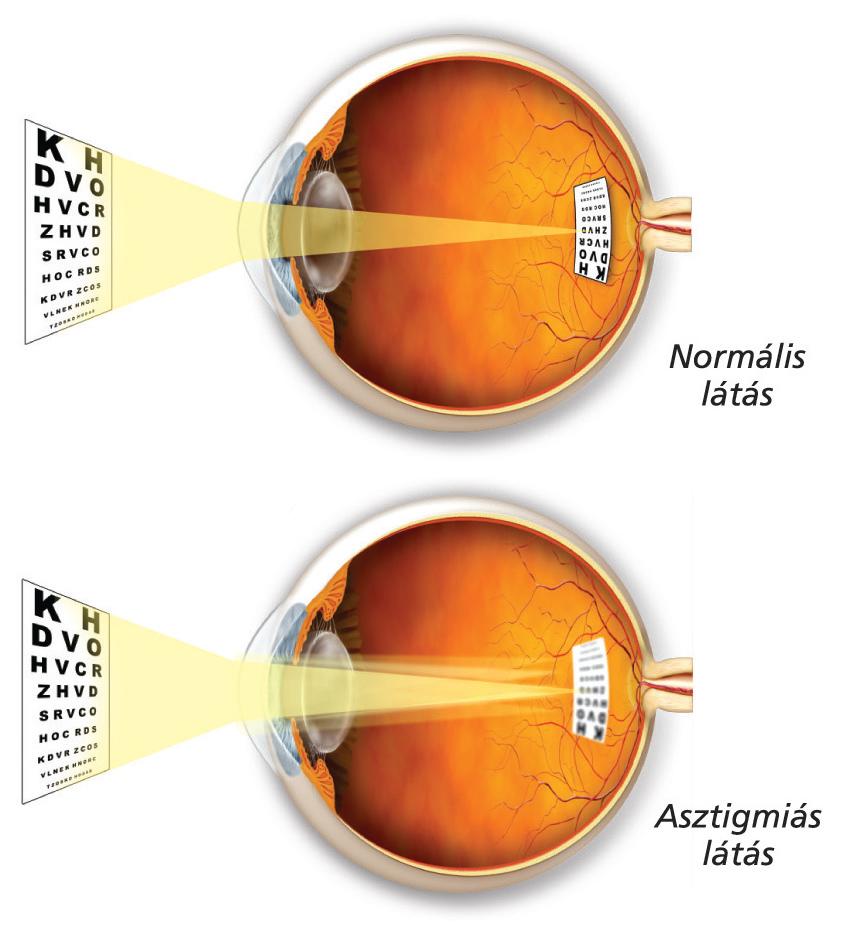 vitaminok a látás rendjéhez