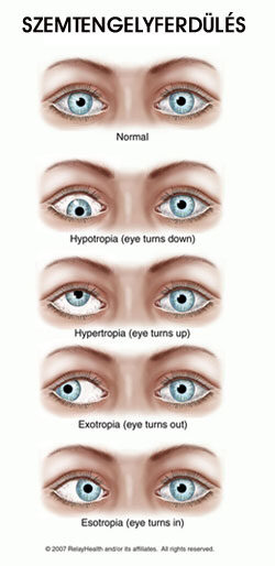 szem, hogyan lehet helyreállítani a látást
