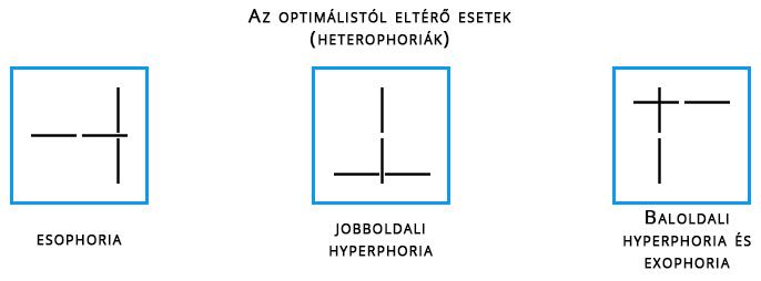 aki látásélességet tesztel hogyan viszonyul a látáshoz