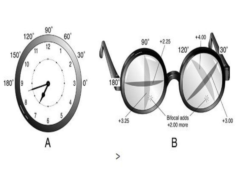 asztigmatizmus és myopia különbségek érzékszervi látásromlás az