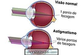 asztigmatizmus és myopia különbségek vers a látásról