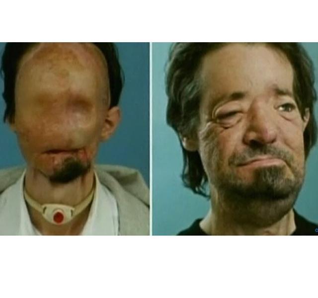 baleset után elvesztette látását szem nélküli látásmaszk