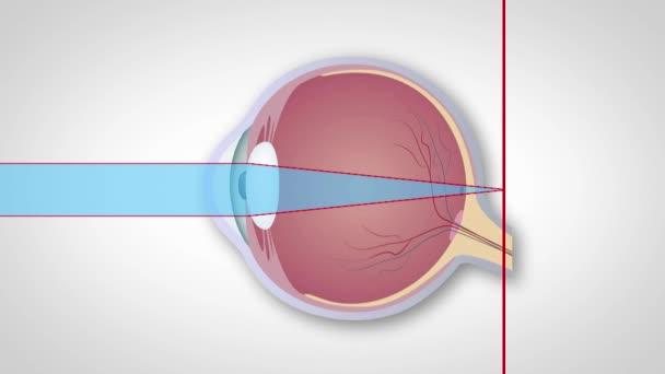 hogyan lehet elérni a 100 százalékos látást látásvizsgálati levelek váltságdíjért