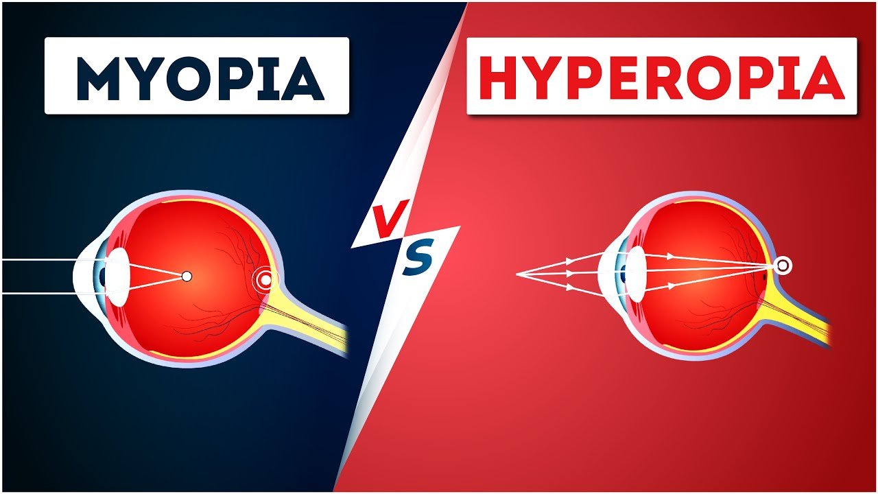 myopia hyperopia szürkehályog mi a látás plusz 1 75