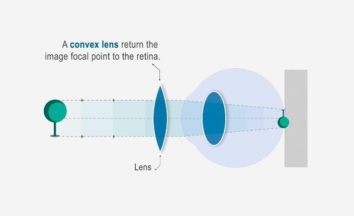 elképzelés, hogyan lehet megvédeni a látás mínusz 3-ra csökkent