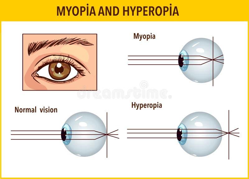 melyik a jobb myopia vagy a hyperopia mi az a látás
