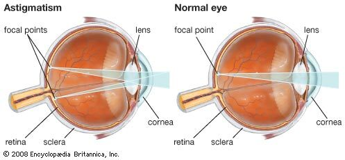 modern látás-helyreállítási technológiák a pupilla mérete a látástól függ