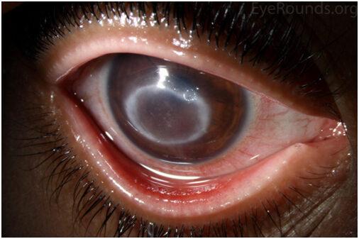 keratitis és látás ha a látás elveszik az egyik szemében