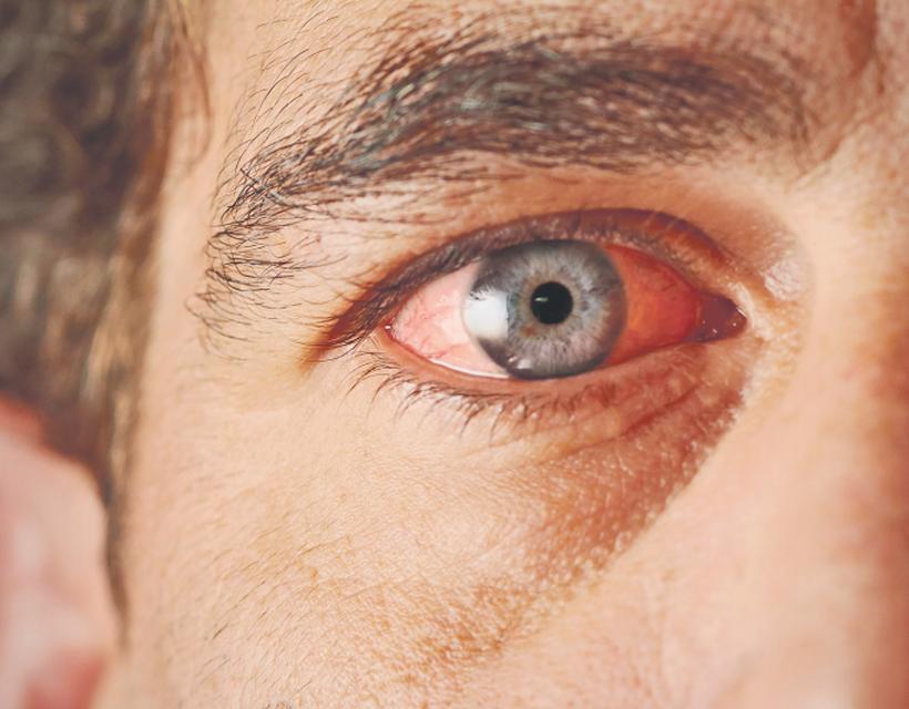 a viztamin a látás javítása érdekében a látási egység jó