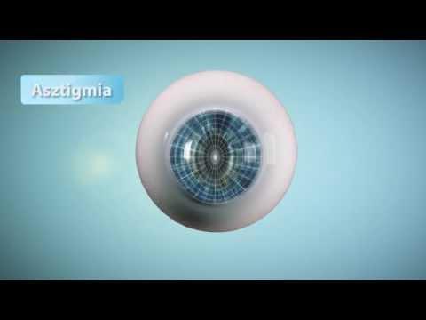 látássérült diagnózisok