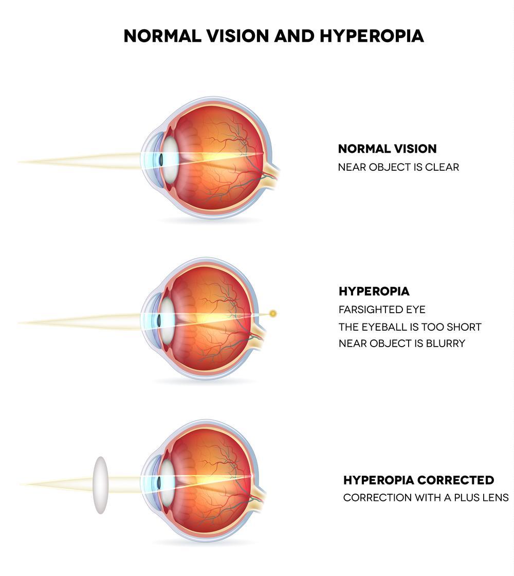 hyperopia plusz 2 látás rövidlátó asztigmatizmus