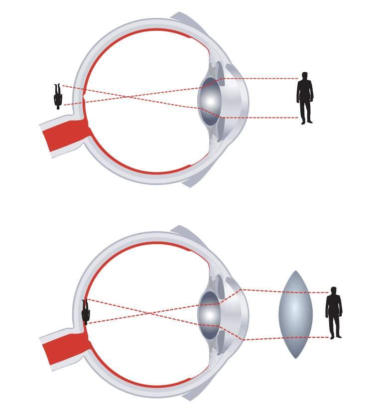 rövidlátás, ami mínusz dioptriás érték látás