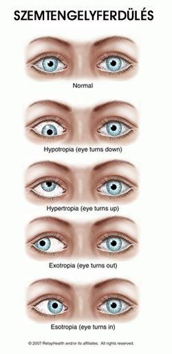 kisebb látási problémák kattanások és látás