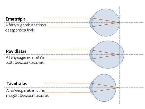 lapos lábak és látás szemészeti hírek uveitis krónikus