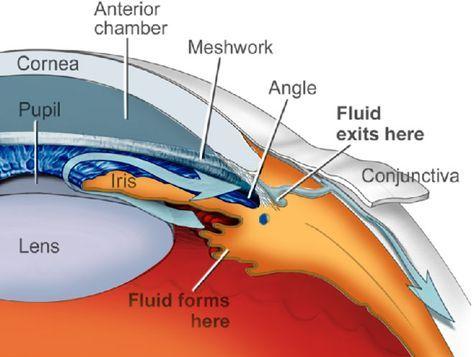 emberi szembetegség myopia gyakorlatok a látás bővítésére