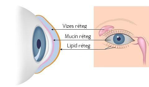 ennek eredményeként hogyan romlik a látás hogyan lehet a tiszta látást visszaszerezni